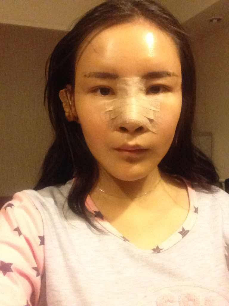 假体隆鼻后鼻子红肿怎么办?