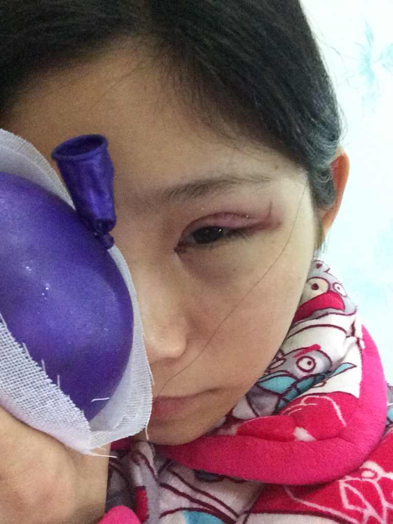 双眼皮全切+开内眼角一到三天案例