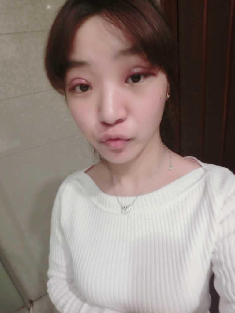 切卡双眼皮一个星期案例,左眼比右眼肿 我会陆续更新哒。