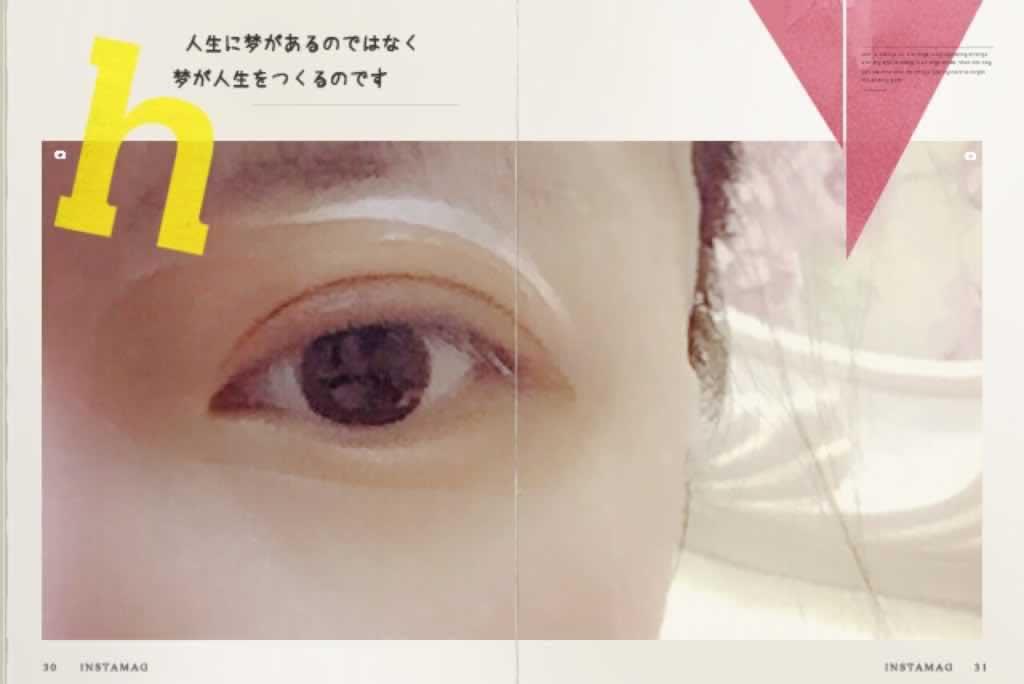 肿眼泡内双眼韩式三点双眼皮+祛脂肪+切皮案例