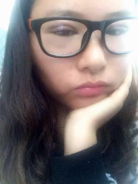 韩式切开双眼皮+开内眼角一到五天案例,偶还想去打瘦脸针。