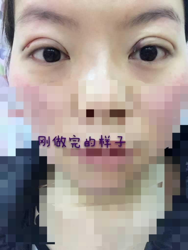 韩式三点双眼皮恢复期案例,恢复以后,会不会不自然。