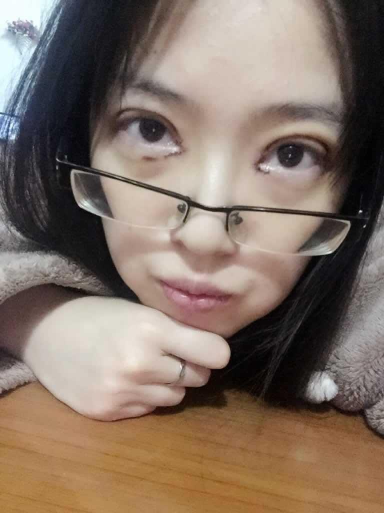 赴韩做的双眼皮手术+内眼角+内提肌手术案例