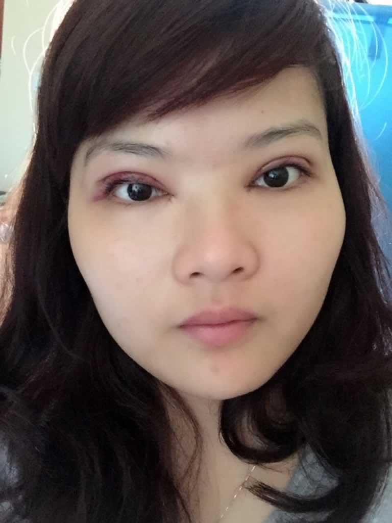 双眼皮手术+开内眼角first天案例,今天first天复查涂药后的照片。