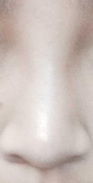假体隆鼻手术过程如何,我这样的鼻子该怎么整才能更有气质更美丽!