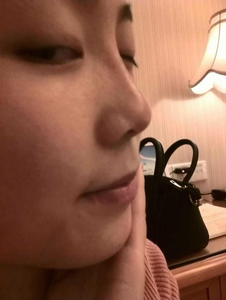 刚做的玻尿酸隆鼻案例,做的鼻子好看吗?