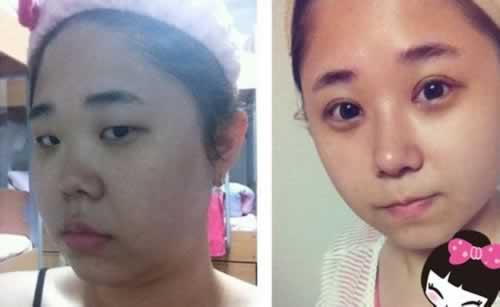 鼻综合术后1-7天的照片,变化大到自己认不出来