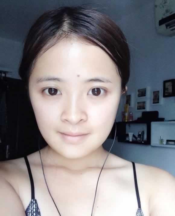 下巴后缩是怎么样的吗,让你的脸型更加完美
