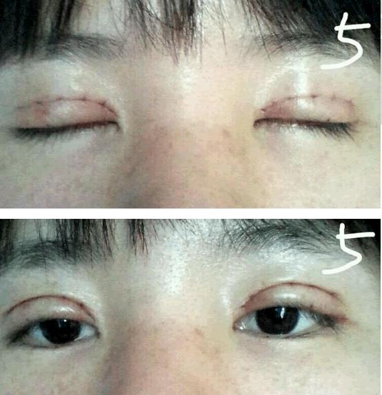 切开双眼皮,切开双眼皮恢复过程,过程很漫长