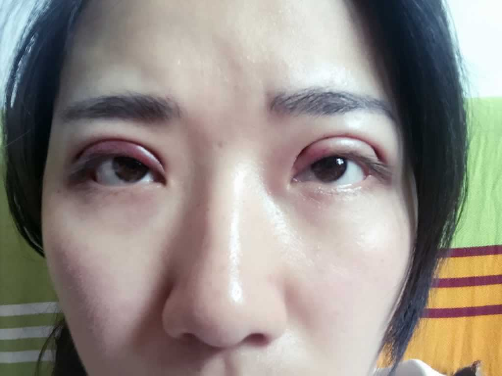 双眼皮全开,眼睛部位抽脂案例,这是first天,昨晚有点疼。
