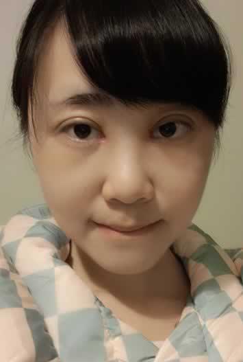 双眼皮和内眼角恢复两个月整形案例