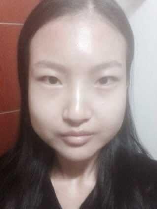 轮廓整形手术后3周案例,不化妆出门也很有自信感~ ~~~~~~~~!!!!