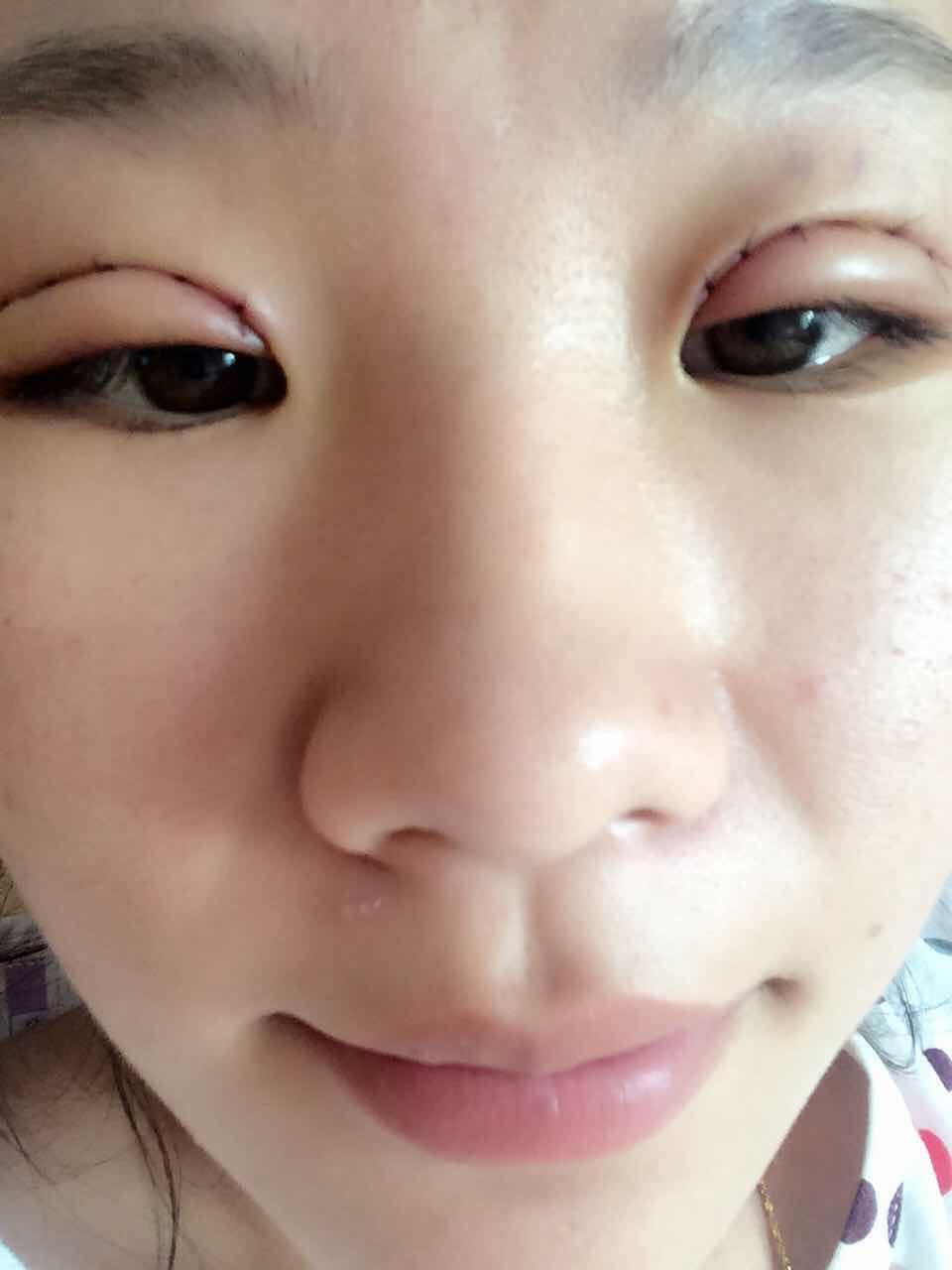 全切双眼皮 去脂 第七天案例~我终于告别了19年的单眼皮和肿眼泡