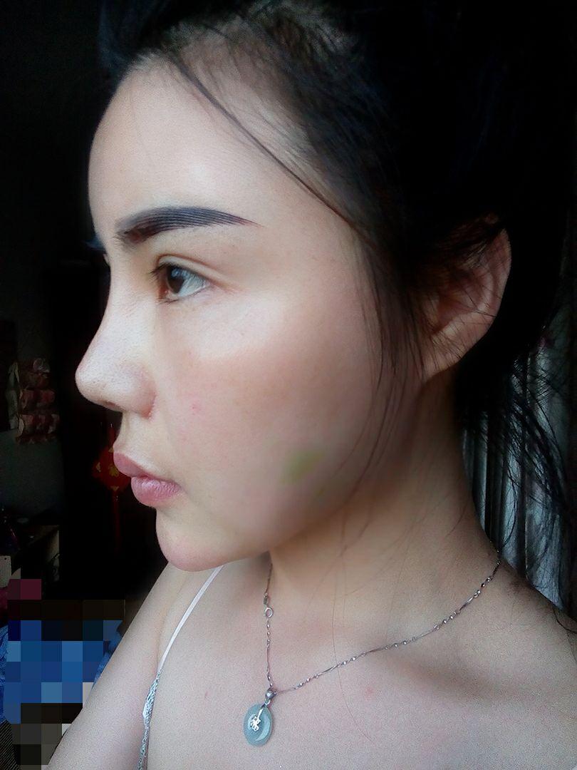 自体脂肪填充案例,脸型改变了。皮肤也饱满变好了。