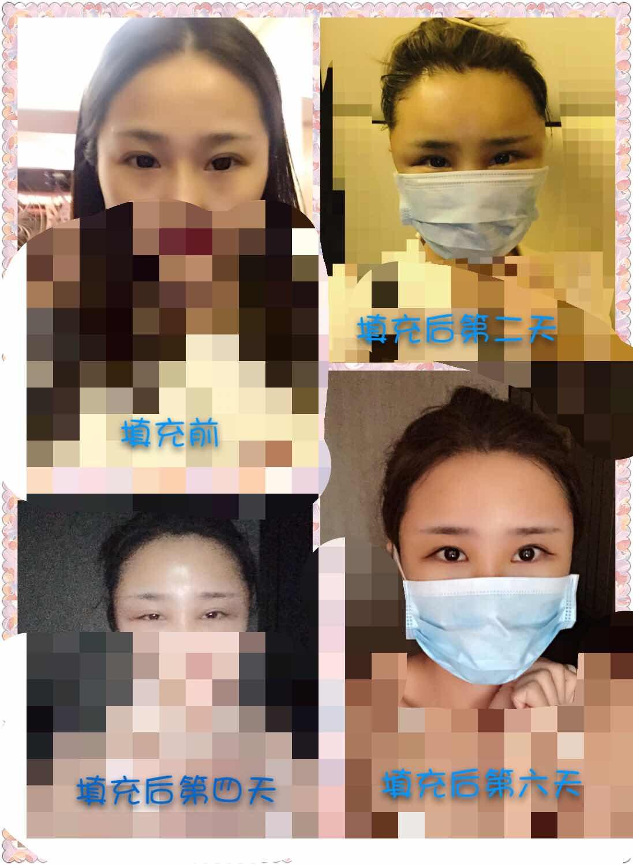自体脂肪填充额头,太阳穴,以及面部吸脂恢复期案例。