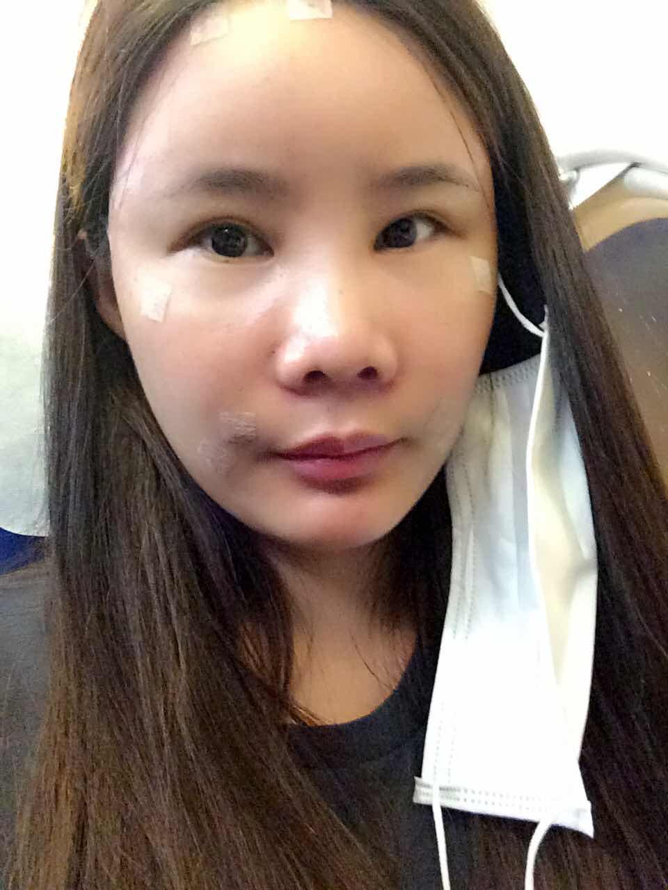 鼻综合还有全脸填充案例,看看我的鼻综合还需要怎么改进