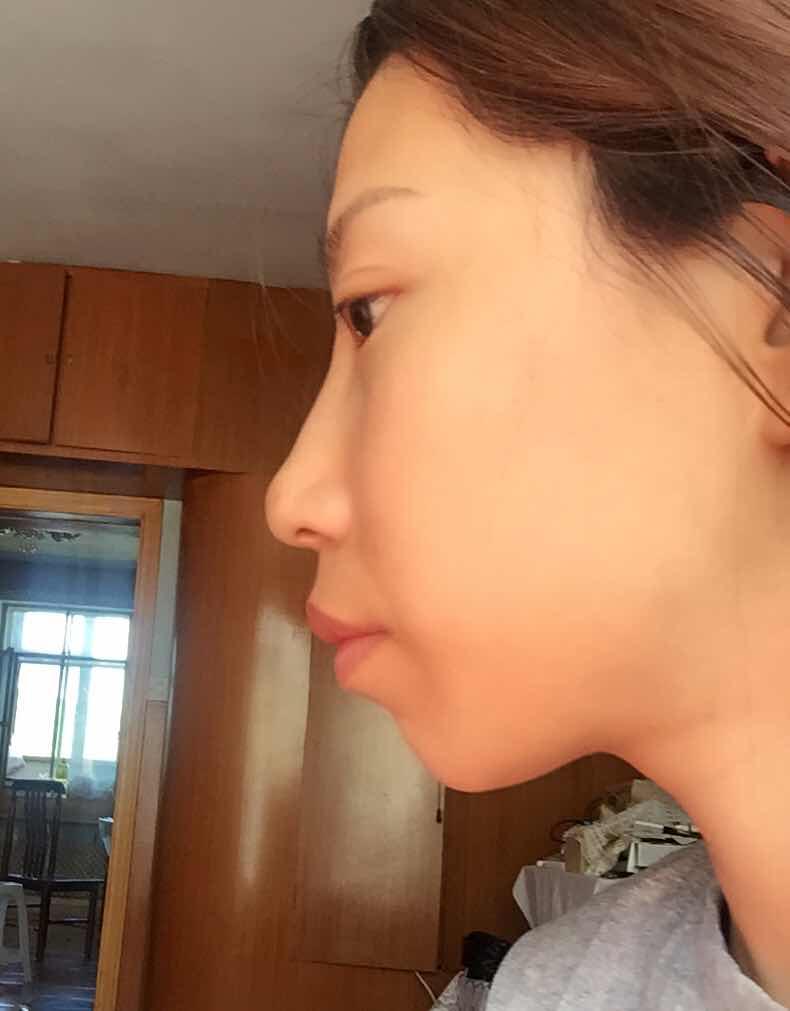 嘴突出整形怎么做,突嘴手术,矫正突出不规则的嘴巴效果怎么样,下巴假体来改善嘴突