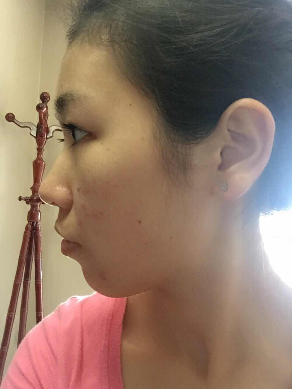 法令纹填充能维持多久?医生大神们帮我看看整哪里 下巴是必须的了。。