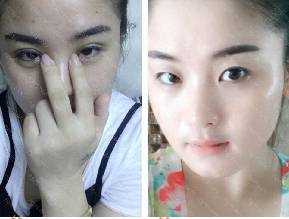 手术后和之前对比照…