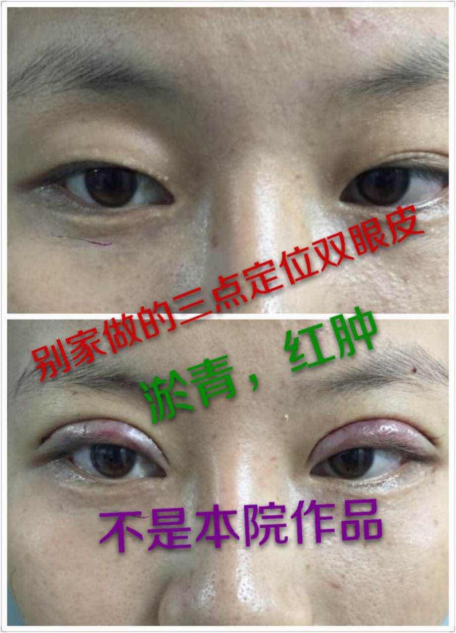 双眼皮术后疤痕的预防与治疗是很关键的,可能会觉得有点宽,一个月后会窄三分之一,更加自然。