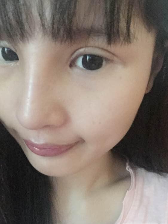 硅胶隆鼻+耳软骨垫鼻尖+双眼皮修复的效果图案例