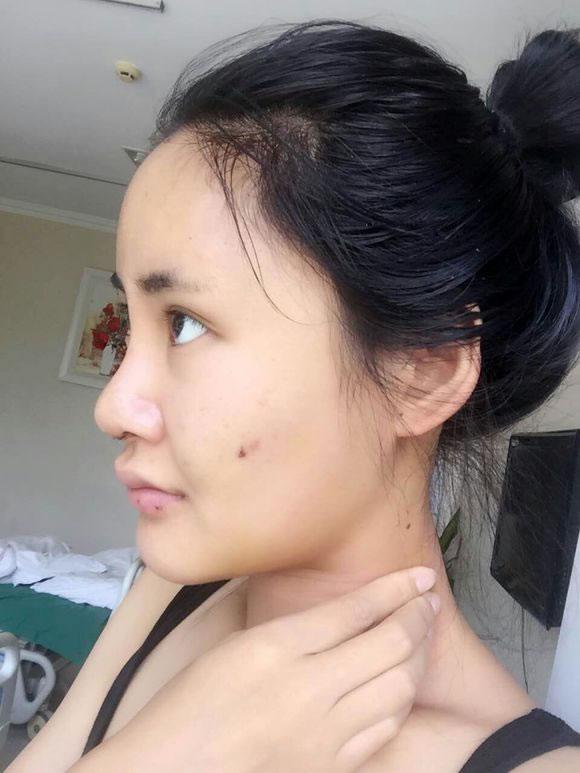 假体隆鼻,填充下巴和额头的效果图前后对比,通过案例真的是可以看出变化很大的。