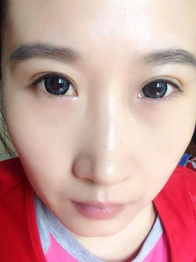 全切双眼皮疤痕增生怎么办,有专门去疤痕的药