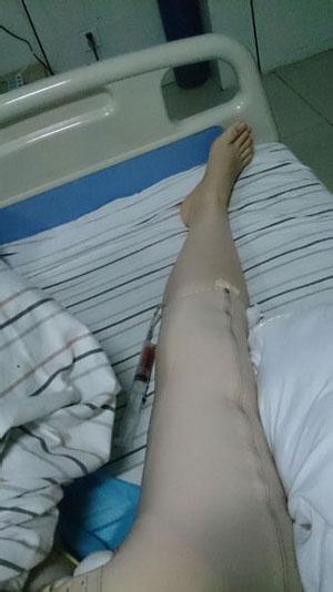 大腿环吸+肉毒素瘦小腿 瘦了好多