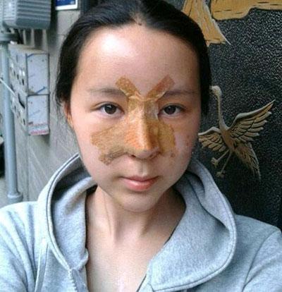 埋线法双眼皮+硅胶隆鼻 我的美丽蜕变日记~