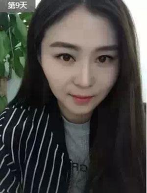 【整形日记】瘦脸53天日记,大饼脸变小V脸~