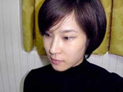 隆鼻整形案例,隆鼻前后对比照图片