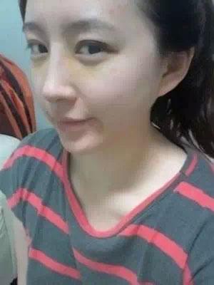 瘦体蛋白瘦脸,切开双眼皮和假体隆鼻术都做好了,案例效果图非常好哦。