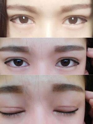 切开双眼皮术一个月的变化效果图案例来了