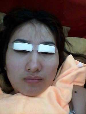 做的全切双眼皮,效果是长期性的案例效果图。