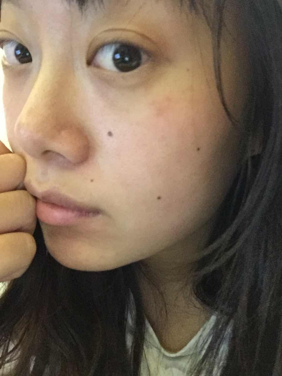 双眼皮做宽了能修吗,双眼皮半年了,不满意,不知道能不能改变