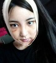 韩式vline手术案例,你们做完多久可以消肿?