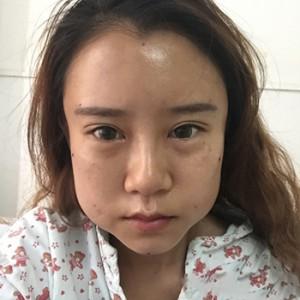 做了脂肪填充额头,太阳穴,卧蚕,苹果肌,鼻唇沟,泪沟多项手术项目的效果,我觉得我的案例大家可以看下
