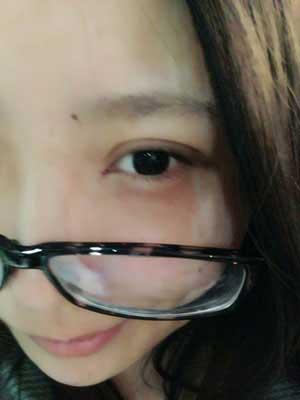 双眼皮手术半个月前后对比变化效果图案例,每一天都发生质的变化!
