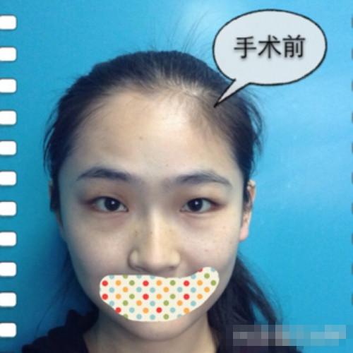 双眼皮和开眼角手术效果前后对比,来和大家分享案例