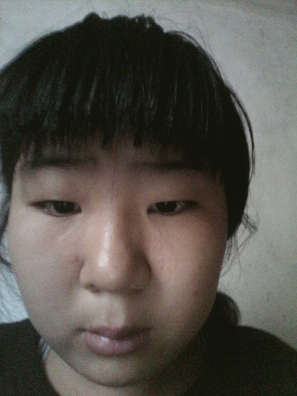 韩式三点和全切的区别怎么区分,切开割双眼皮还是韩式三点双眼皮