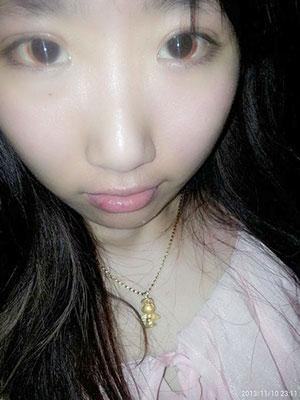 韩式三点式双眼皮案例效果图,你们做完眼睛里面的淤血什么时候才消失的呢?