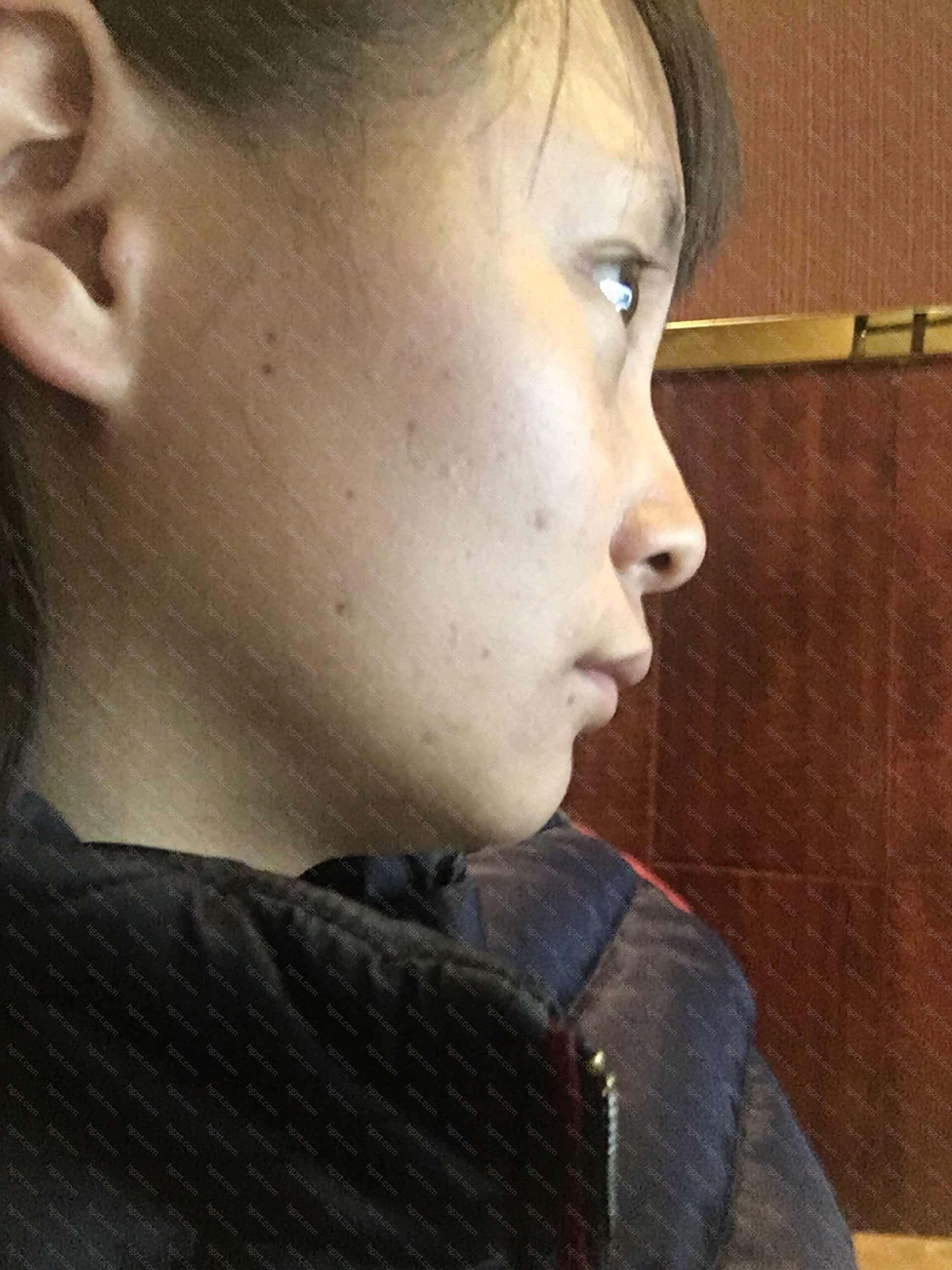 但由于韩国女性大都天生横突的颧骨往往使面部呈现菱形或方形面容