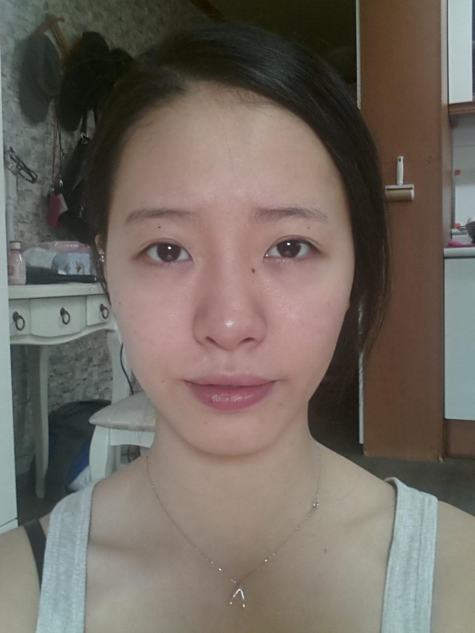 鼻部综合整形效果好吗,韩国美佳整形医院综合鼻