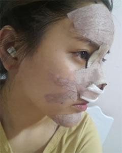 自体软骨垫鼻副作用_?自体隆鼻多久恢复?成活率?多少钱