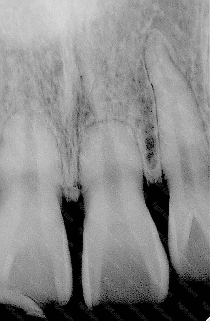牙齿前突矫正的方法是什么呢?很多有着牙齿前突的朋友都很苦恼