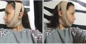 下颌角整形+假体隆鼻术后的对比效果图案例,全新的面貌