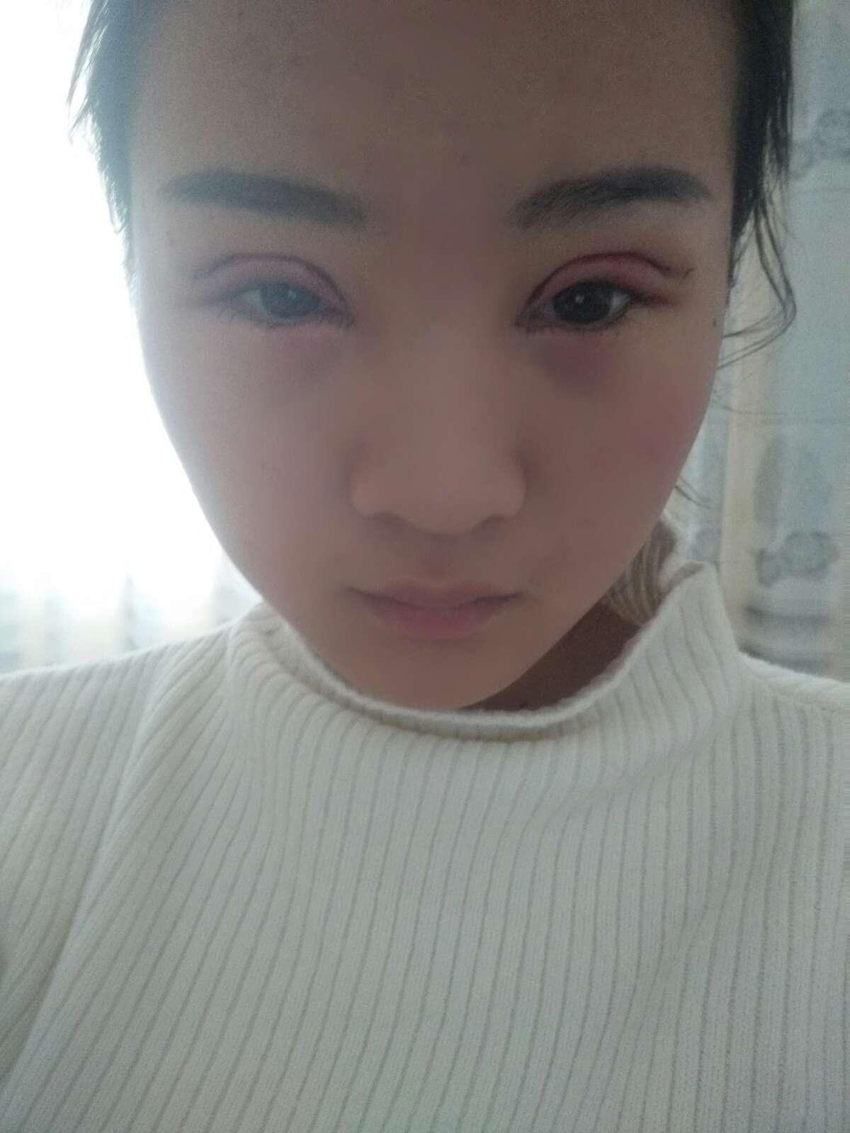 双眼皮冷热敷时间是怎么规定的,手术第二天,还是很肿