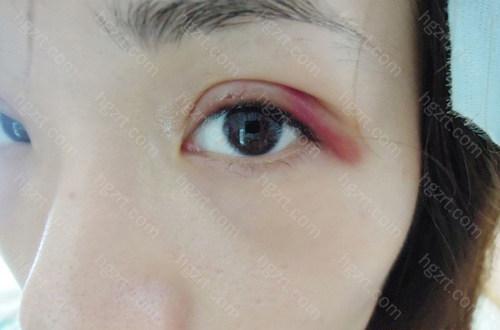 但是我觉得瘀血的颜色似乎比昨天还要淡了
