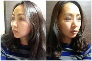 除皱童颜手术的前后效果对比案例,大饼脸变细啦,好开心噢。。。