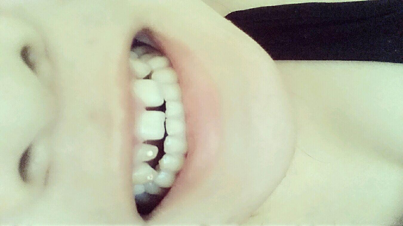 牙齿缝隙大怎么办,愁死了,可怎么整,必须带牙套矫正吗